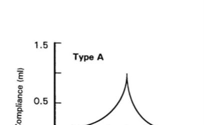 Tip A Timpanogram özellikleri nelerdir?