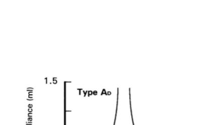 Tip Ad Timpanogram özellikleri nelerdir?