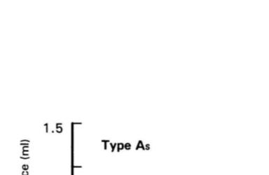 Tip As Timpanogram özellikleri nelerdir?