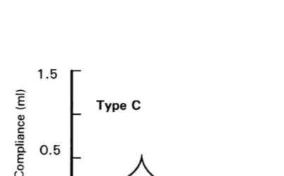 Tip C Timpanogram özellikleri nelerdir?