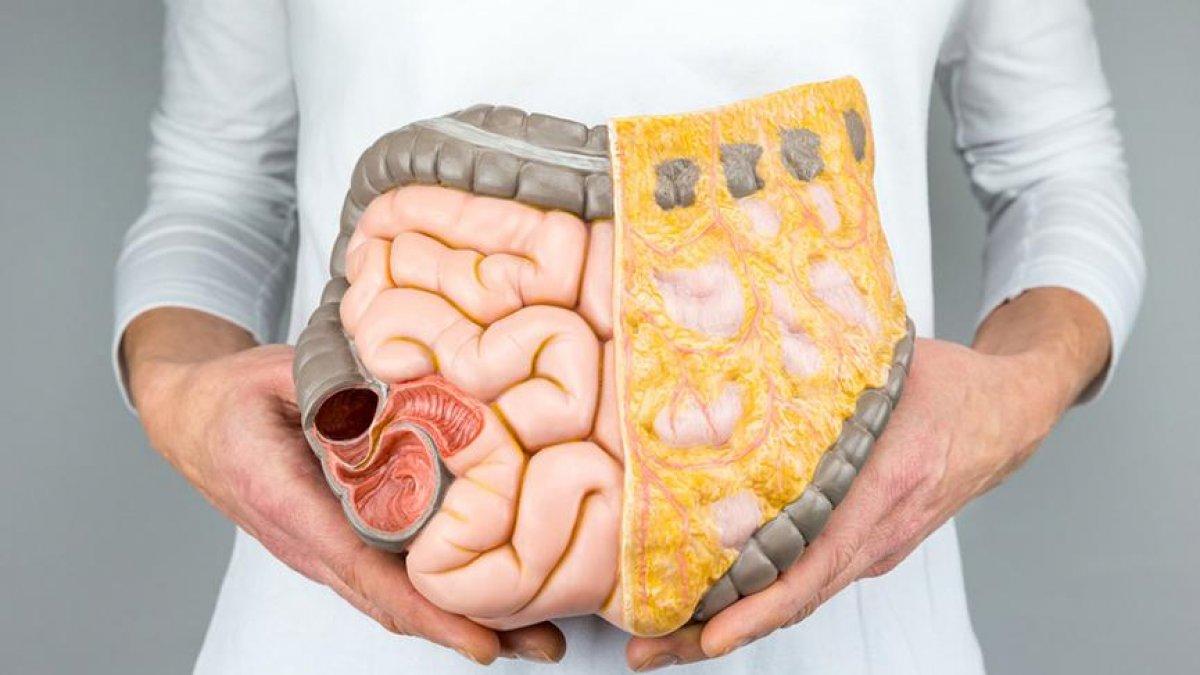 Geçirgen Bağırsak Sendromu nedir?